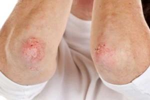 Врачи проконсультируют по вопросам лечения и профилактики псориаза